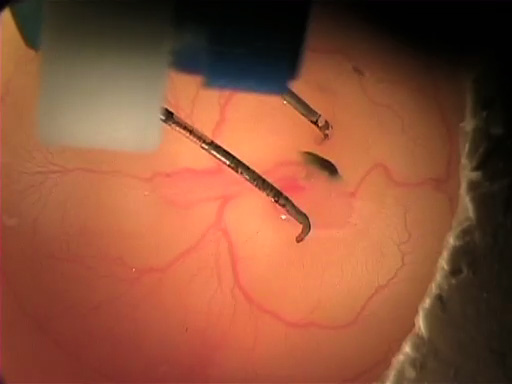 <em>In ovo</em> Electroporation of Chicken Embryos thumbnail
