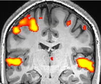 fMRI: Functional Magnetic Resonance Imaging thumbnail