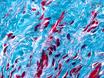 Die Implantation von Engineered Tissue in der Ratte Herz thumbnail