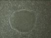 人类胚胎干细胞(ES细胞)的繁殖 thumbnail