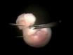 マウス背側前脳植片の分離 thumbnail