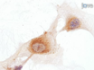 Isolation and Large Scale Expansion of Adult Human Endothelial Colony Forming Progenitor Cells thumbnail
