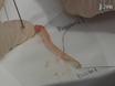 Murine Colitis Modeling using Dextran Sulfate Sodium (DSS) thumbnail