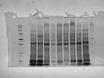 에서 독소 유도와 단백질 추출<em> Fusarium</em><em> 종.</emProteomic 연구> 문화 thumbnail