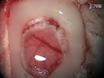 Lazer nasıl oluşturun Kan Akış Monitör Kontrast Görüntüleme (LSCI) Sistem speckle thumbnail