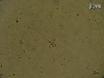 Transcriptome Analysis of Single Cells thumbnail