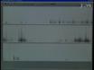 वृद्ध और Parkinsonian चूहे में अल्ट्रासोनिक vocalizations लक्षित प्रशिक्षण thumbnail