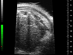 Introduction to the Ultrasound Targeted Microbubble Destruction Technique thumbnail