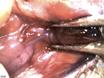 Canulación de la glándula salival submaxilar del ratón a través del conducto de Wharton thumbnail