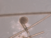Isolation and Culture of Neural Crest Stem Cells from Human Hair Follicles thumbnail