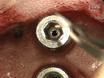 Bir Fiber optik Basıç kullanarak Sıçanlarda Epidural İntrakraniyal Basınç Ölçümü thumbnail