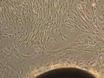 Skin stansbiopsi Explantationsersättning Kultur för Derivering av primära humana fibroblaster thumbnail
