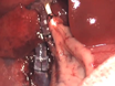 Ortotopisk Levertransplantation hos råttor thumbnail
