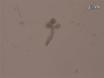Modificación genética y recombinación de las Glándulas Salivales culturas de órganos thumbnail