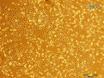 La muerte celular asociada con Mitosis anormal observada por Imagen confocal en vivo las células cancerosas thumbnail