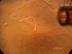 تقييم الكالسيوم سباركس السليمة في ألياف العضلات الهيكلية thumbnail