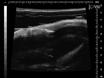 Minimally Invasive Establishment of Murine Orthotopic Bladder Xenografts thumbnail