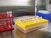 التحقيق البروتين البروتين التفاعلات في الخلايا الحية باستخدام الرنين ضوء بارد نقل الطاقة thumbnail