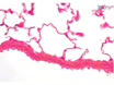 A Method for Generating Pulmonary Neutrophilia Using Aerosolized Lipopolysaccharide thumbnail
