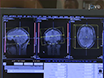 Transcranial Direct Current Stimulation and Simultaneous  Functional Magnetic Resonance Imaging thumbnail