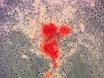 العزلة وإثراء الإنسان الدهنية المشتقة من خلايا انسجة لتعزيز تكون العظم thumbnail