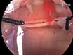 Legatura permanente dell'arteria discendente anteriore sinistra coronarica nei topi: un modello di post-infarto rimodellante miocardico e insufficienza cardiaca thumbnail