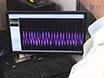 A Method of Nodose Ganglia Injection in Sprague-Dawley Rat thumbnail