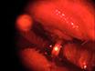 Modelo de Rato Induzida fotoquimicamente posterior neuropatia óptica isquémica thumbnail