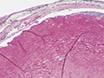 Ein Hydrogel Konstruieren und Fibrin-basierte Kleber Umgangs Therapeutics in einem murinen Myokardinfarkt Modell liefern. thumbnail