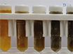 <em>Ex Situ</em> Normothermic Machine Perfusion of Donor Livers thumbnail