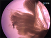 Isolation and Characterization of Satellite Cells from Rat Head Branchiomeric Muscles thumbnail