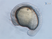 Microbead Implantation in the Zebrafish Embryo thumbnail