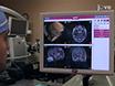 Tıbbi Refrakter Epilepsi Cerrahi öncesi Değerlendirilmesi Robotik Yardım ile stereo-Elektro-Ensefalo-Graphy (Seeg): Bir Teknik Not thumbnail