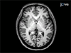 Neuronavigation-guided Repetitive Transcranial Magnetic Stimulation for Aphasia thumbnail