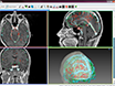 En rørledning for 3D Multimodalitet Bilde Integrerings- og Datamaskinassistert planlegging i Epilepsi Surgery thumbnail