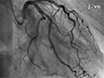 Intracoronary Acetylcholine Provocation Testing for Assessment of Coronary Vasomotor Disorders thumbnail