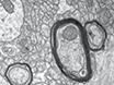 Preparation of Non-human Primate Brain Tissue for Pre-embedding Immunohistochemistry and Electron Microscopy thumbnail