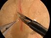 Bewertung der menschlichen Fettgewebe mikrovaskuläre Funktion mit Videomicroscopy thumbnail