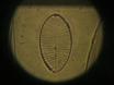단계 대비 및 차등 간섭 대비 (DIC) 현미경 thumbnail