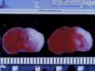 De hypoxische ischemische encefalopathie Model van de Perinatale ischemie thumbnail